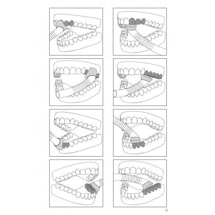 Dürr Dental Prophylaxis Cannula 16mmØ, Pack of 4